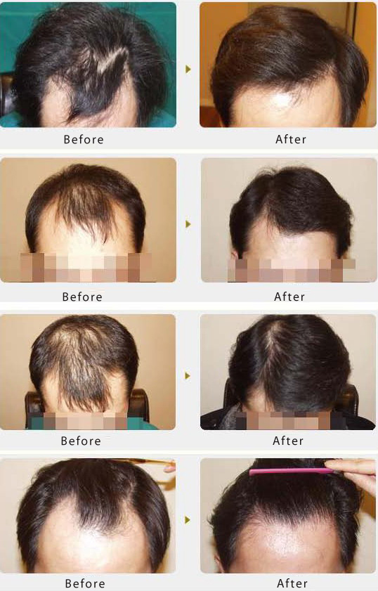 男性头顶头发稀少怎么治疗呢