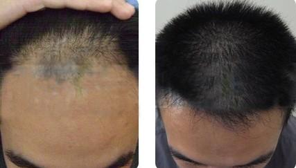 小红点,第二天变成暗红色小血痂,#后7—10天,随着种植头发的生长图片