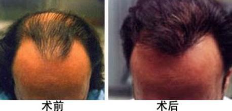 种植头发的效果如何